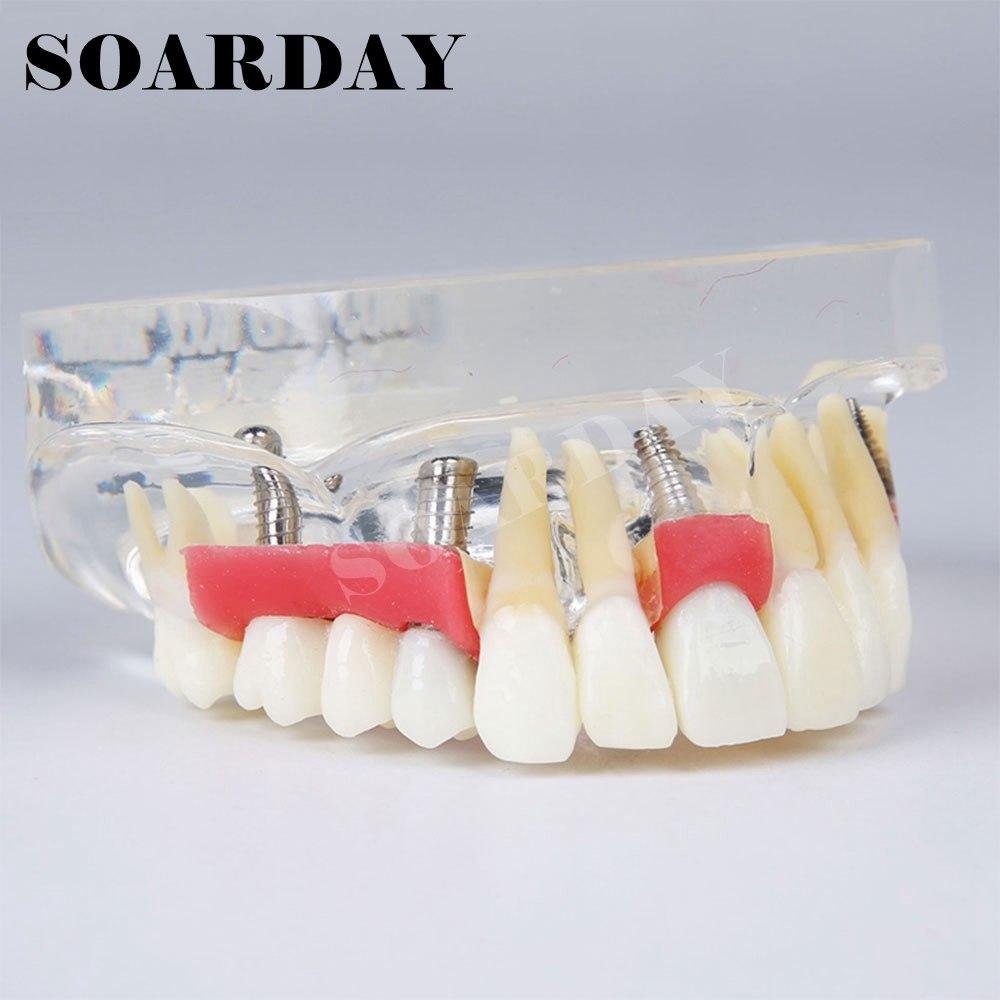 À quoi sert un implant dentaire?