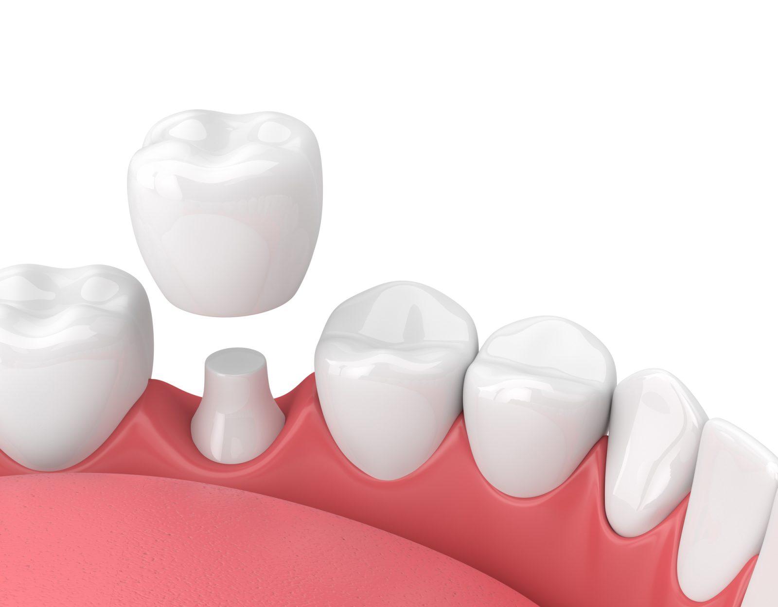Implant dentaire : Un implant performant ?